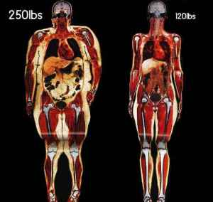 Lighter areas are fat, look at the fat inside the body, the hidden fat which does the damage. That's the first fat that we shed when we start to lose weight through healthy eating and exercise and why that first 10% of starting weight loss is so important.